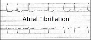 Afib strip 2 - Copy